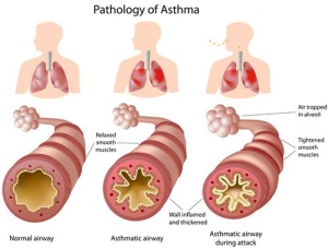 MICO Wars - How to use Alternative Treatments for Asthma and Bronchitis - 28-08-2015 LHDEER (3)