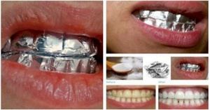 how-to-whiten-your-teeth-using-aluminium-and-baking-soda